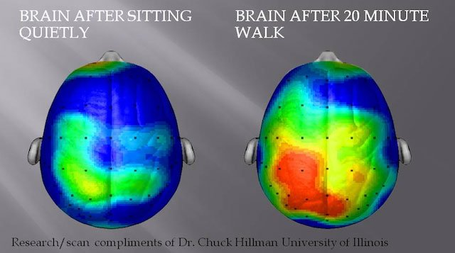 Regular Exercise Could Protect the Brain from Silent Strokes