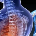 Spine Surgery: Types, Recovery, Risks and Benefits