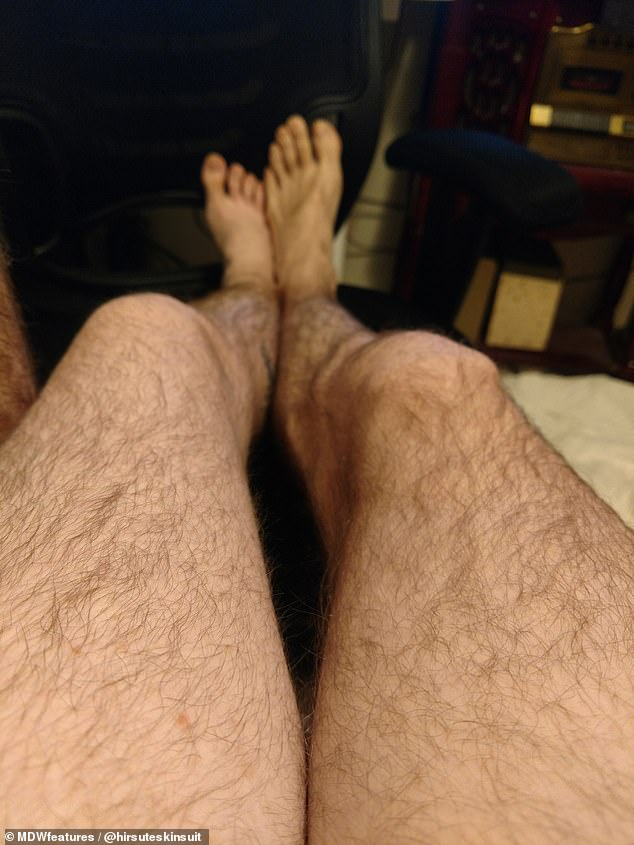 Dana (left) compares her leg with Steve's (right), as she says she feels completely comfortable