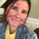 Woman whose acne was so bad she couldn't EAT goes out without makeup for the first time ever – after finally embracing her skin – The Sun