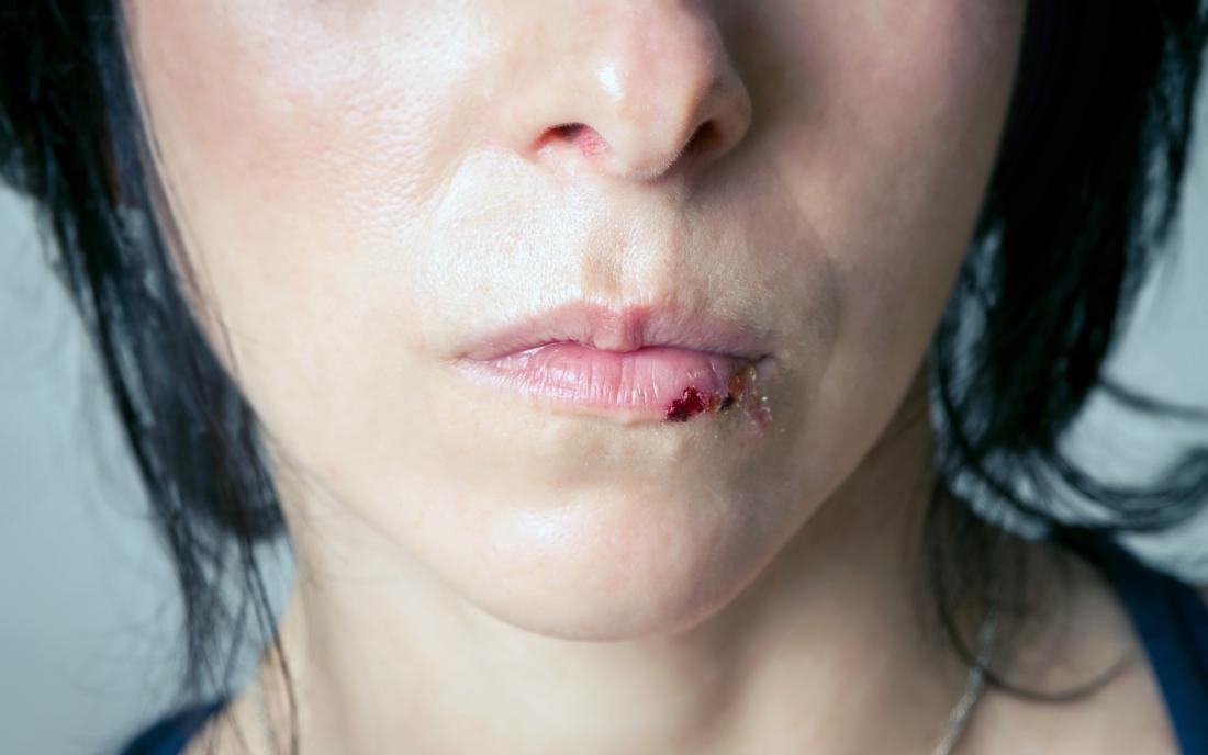 a woman with a split lip.